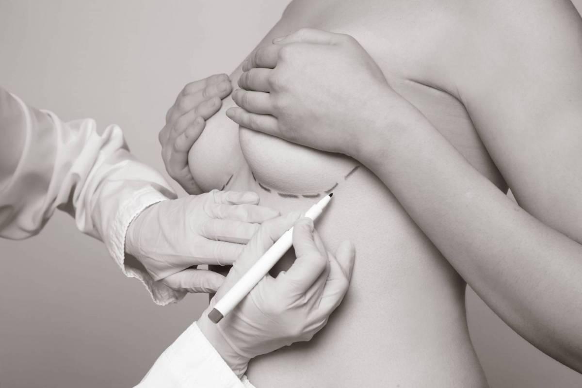 Photo de prothèses esthétiques mammaires - Dr Hamou