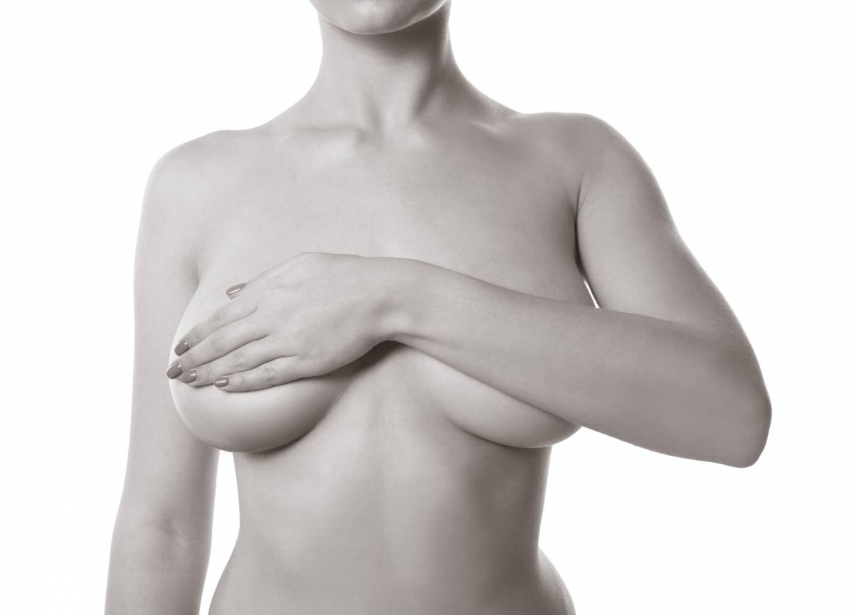 chirurgie lifting des seins - Dr Hamou