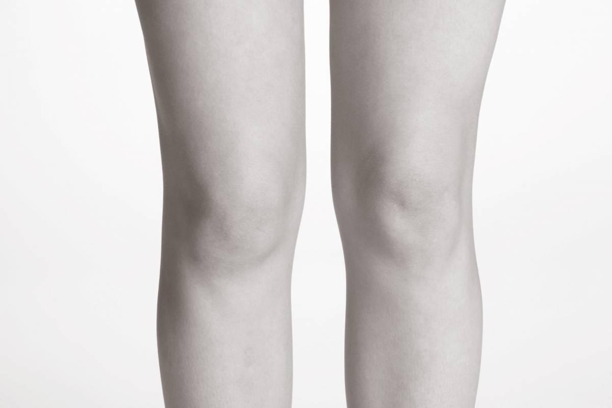 Liposuccion des genoux - Dr Hamou