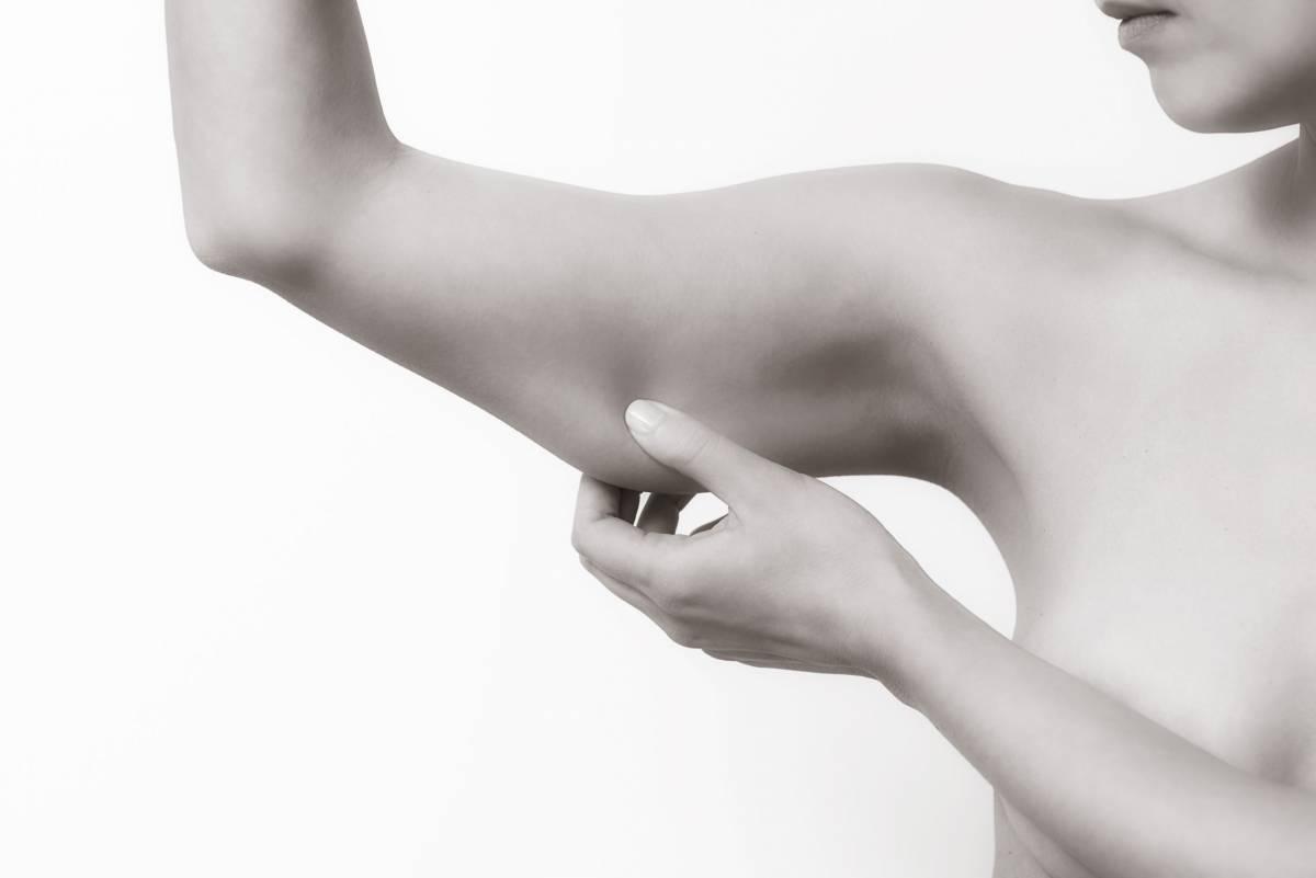 Chirurgie esthétiques des bras - Dr Hamou