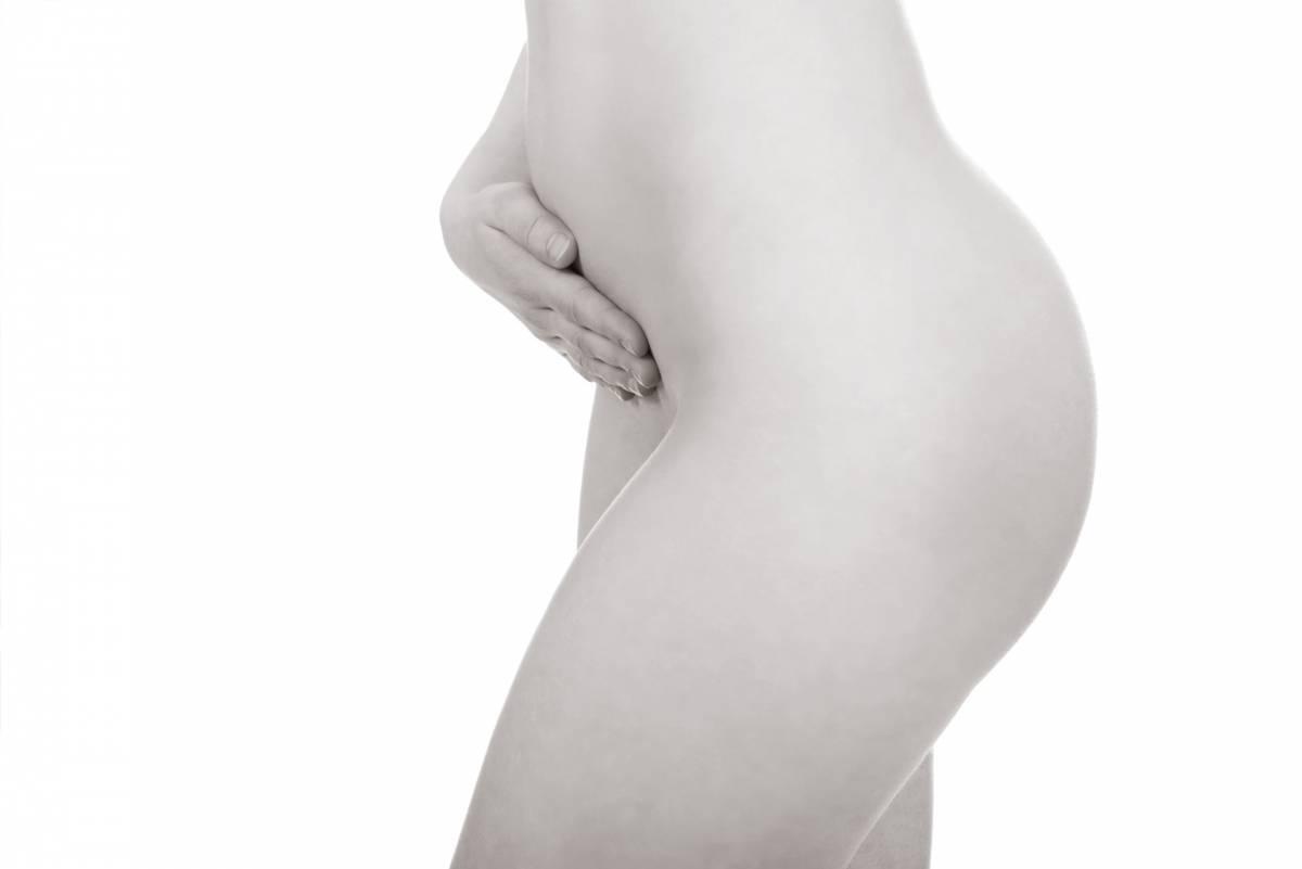 Lipofilling des fesses - Dr Hamou