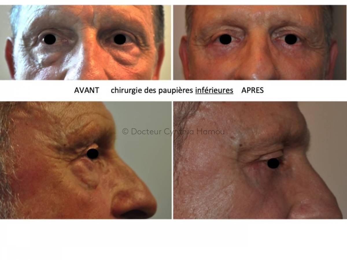 Avant après chirurgie des paupières inférieures - Dr Hamou