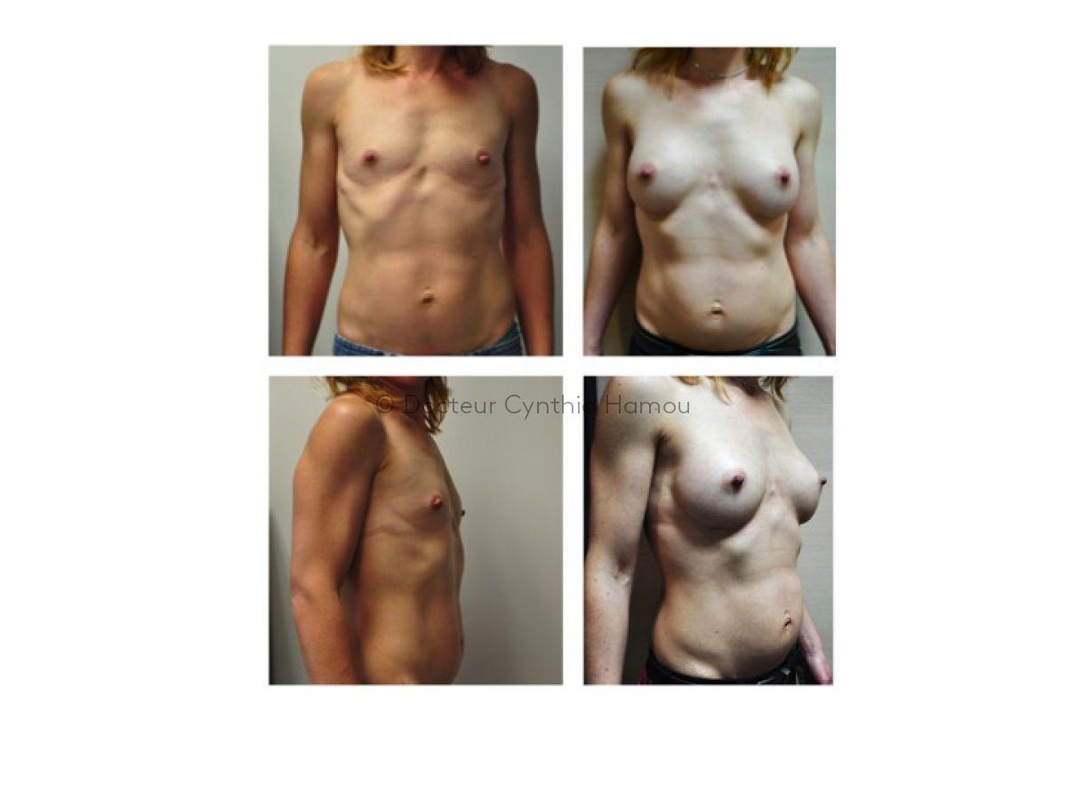 Augmentation Mammaire Par Implants 1 - Docteur Hamou