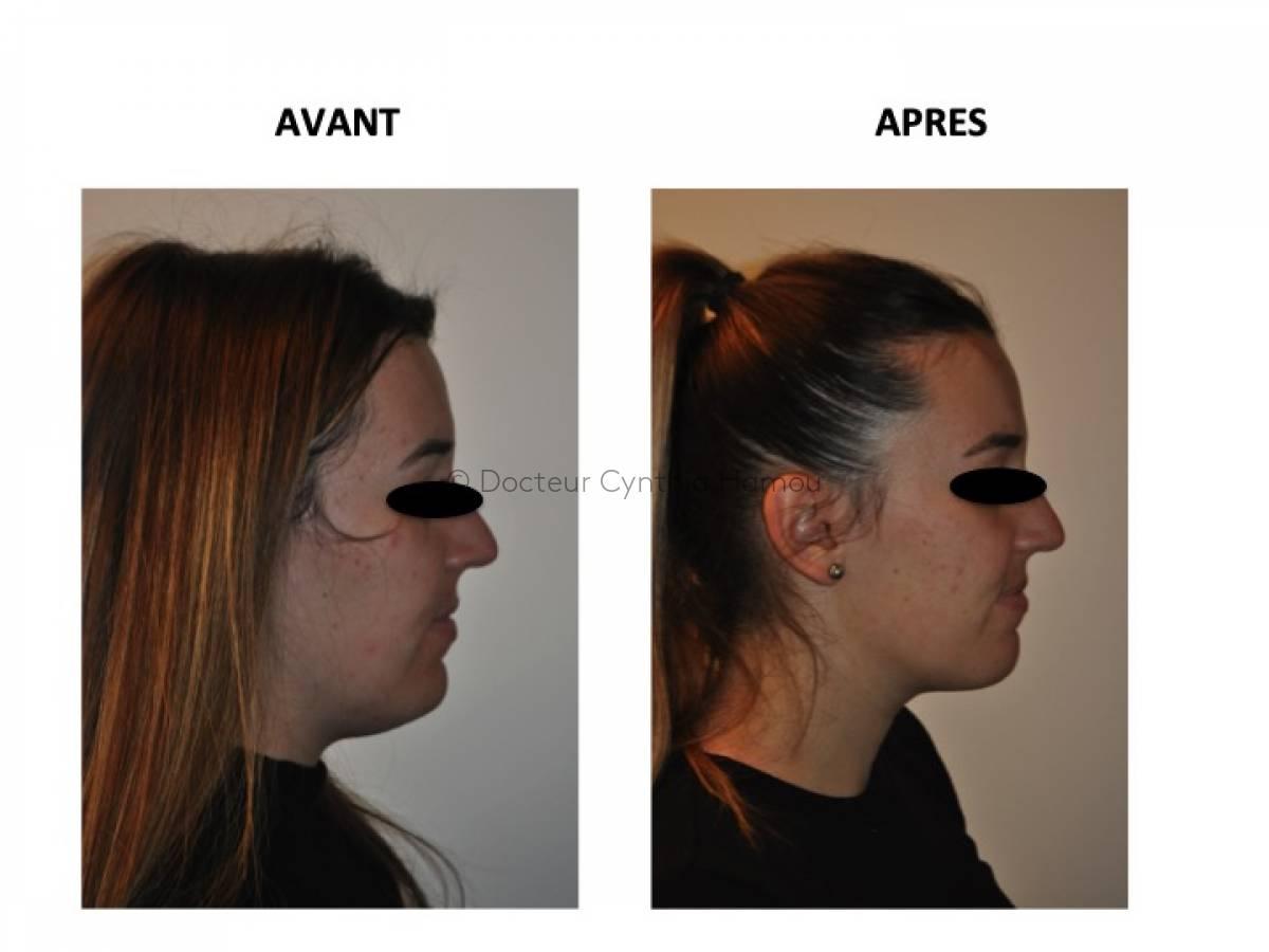 Photo avant/après du Docteur Hamou - Reconstruction mammaire par lambeau abdominal DIEP