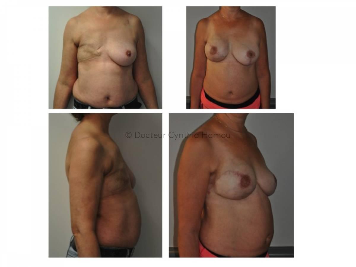 Photo avant/après du Docteur Hamou - Reconstruction mammaire par lambeau de grand dorsal