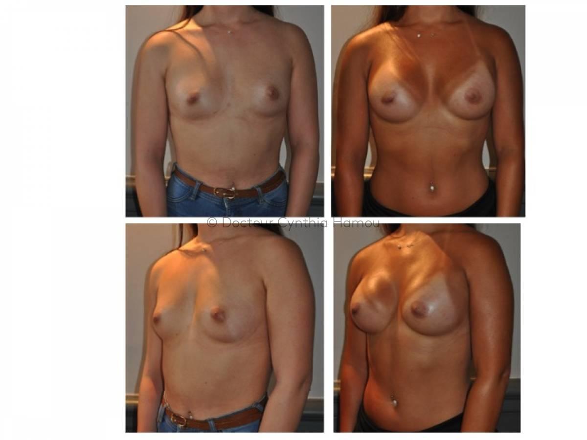 Augmentation Mammaire Par Implants 7 - Docteur Hamou