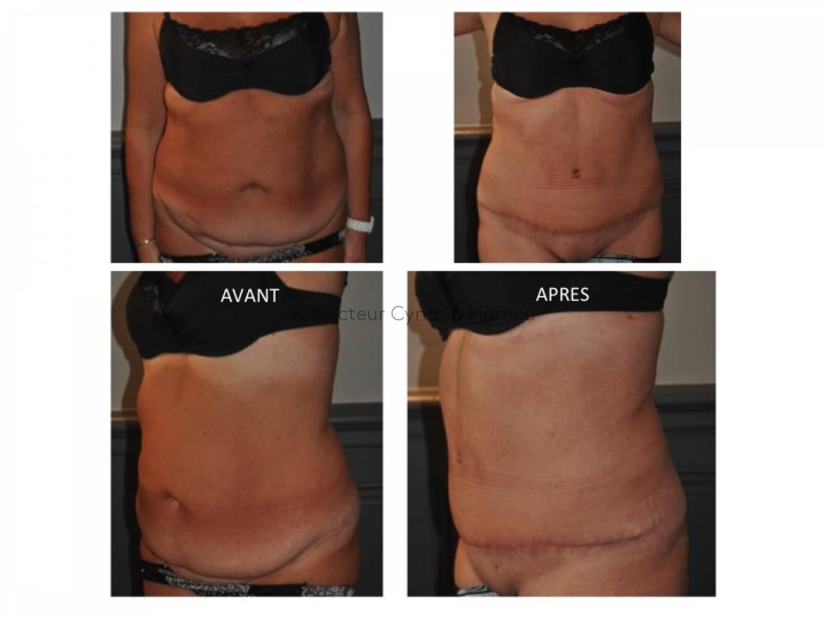 Avant après liposuccion - Dr Hamou
