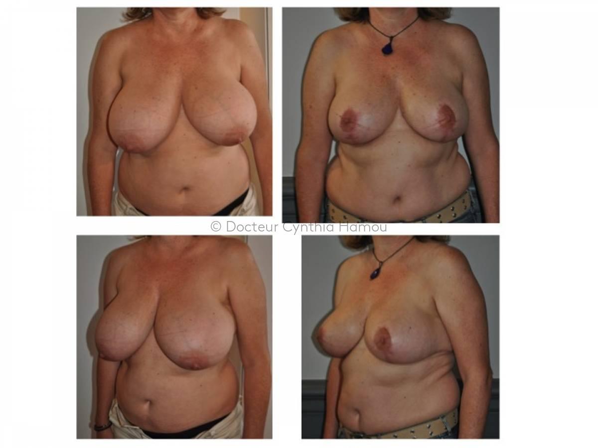 Photo avant/après du Docteur Hamou - Lifting des seins ou chirurgie de la ptose mammaire
