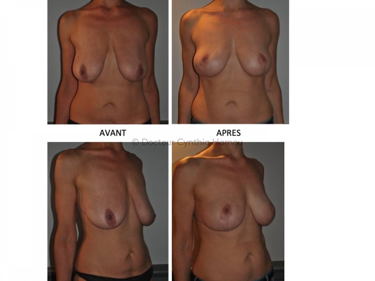 Photo avant/après du Docteur Hamou - Brachioplastie: chirurgie esthétique des bras