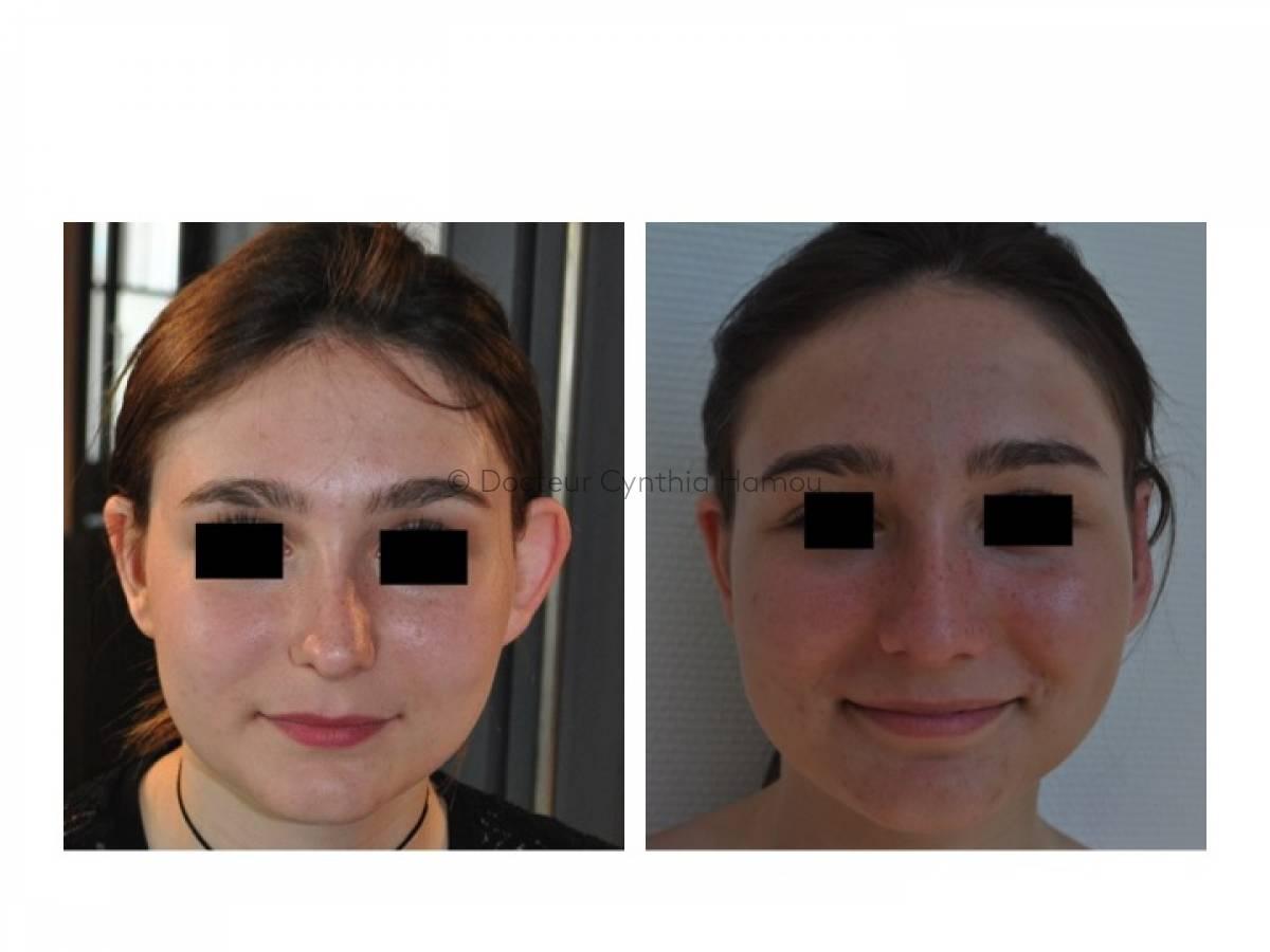 Augmentation Mammaire Par Implants 8 - Docteur Hamou