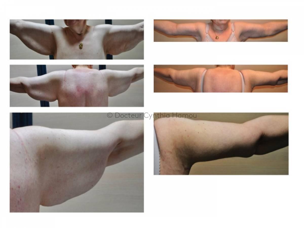 Lifting des seins avant après 2 - Dr Hamou
