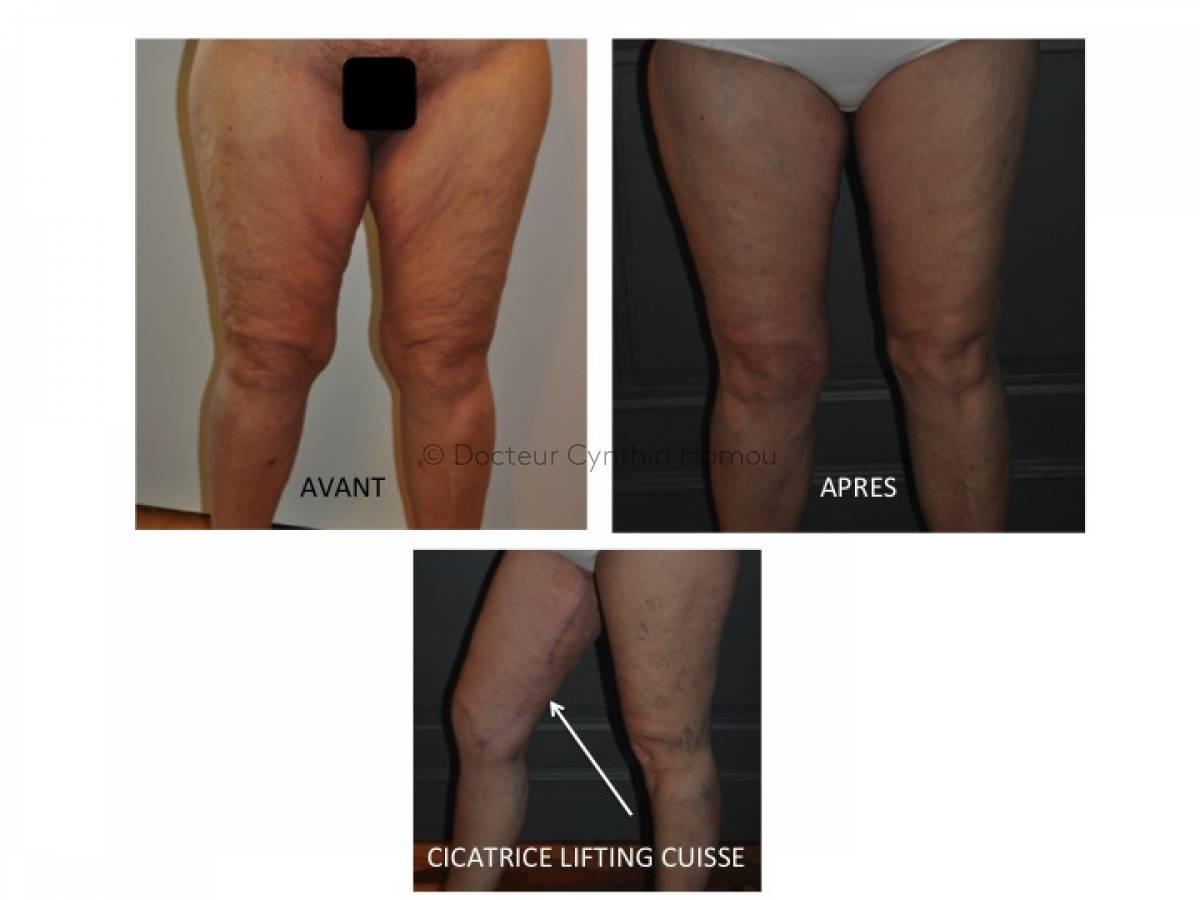 Photo avant/après du Docteur Hamou - Abdominoplastie: chirurgie esthétique du ventre