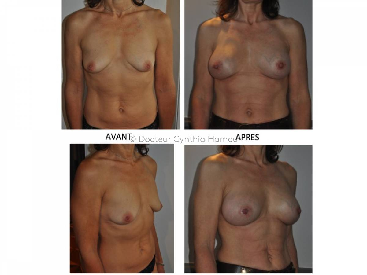 Photo avant/après du Docteur Hamou - Chirurgie de réduction mammaire