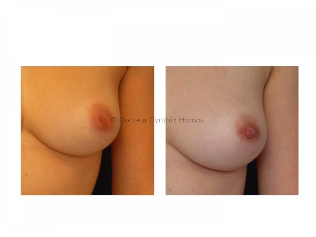 Augmentation Mammaire Par Implants 6 - Docteur Hamou