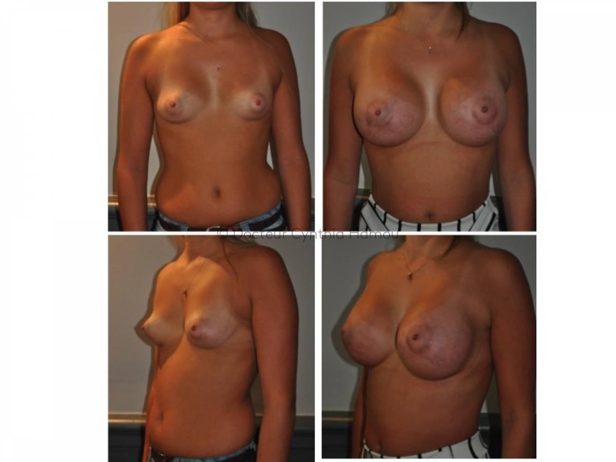 Photo avant/après du Docteur Hamou - La Liposuccion ou lipoaspiration