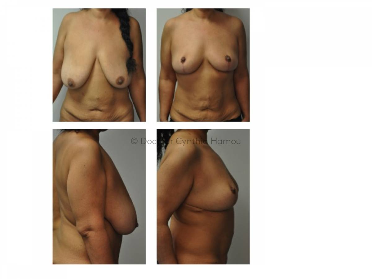 Photo avant/après du Docteur Hamou - Augmentation mammaire par implants