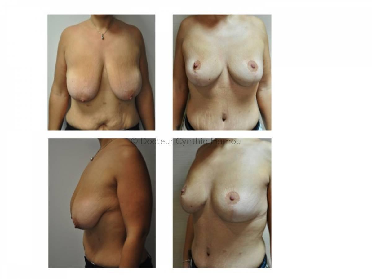 Lifting des seins avant après 3 - Dr Hamou