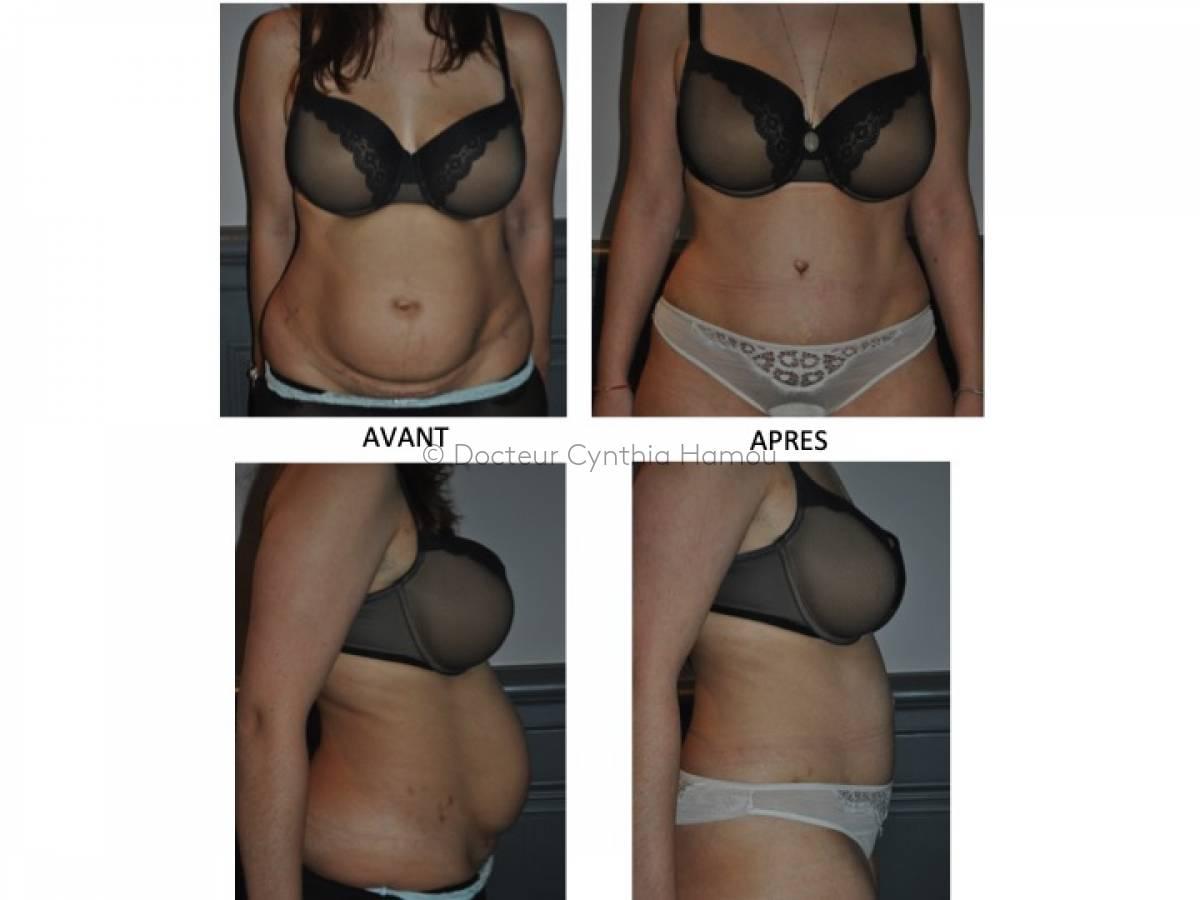 Photo avant/après du Docteur Hamou - Otoplastie pour oreilles décollées