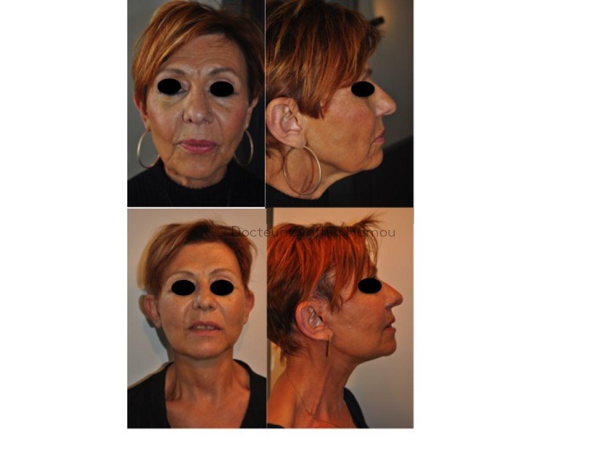 Avant après lifting cervico-facial - Dr Hamou