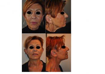 Photo avant/après du Docteur Hamou - Lifting cervico facial : Lifting du visage et du cou